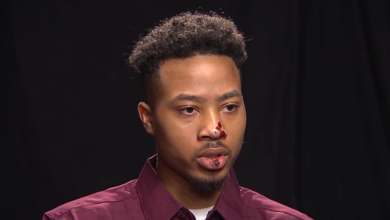 21-year-old Demetrius Hollins fears for his life after being beaten by 2 Georgia police officers